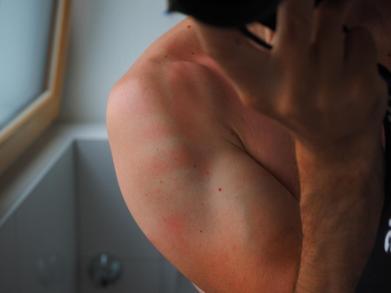 Cómo tratar una quemadura solar